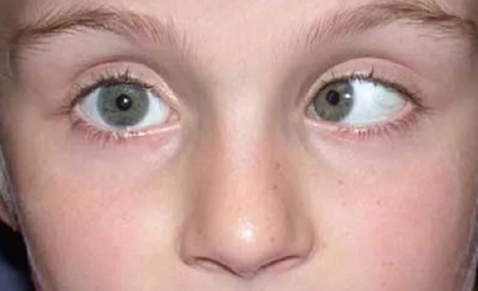 Что такое нистагм глаз у взрослых и детей: симптомы и лечение