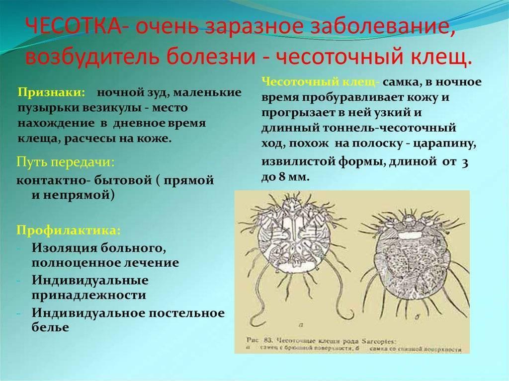Профилактика чесотки у человека: предупреждение болезни
