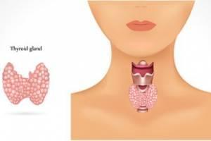 Гипоплазия щитовидной железы у женщин симптомы лечение фото