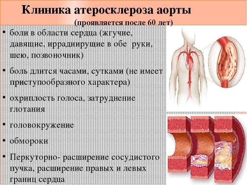крапива при атеросклерозе