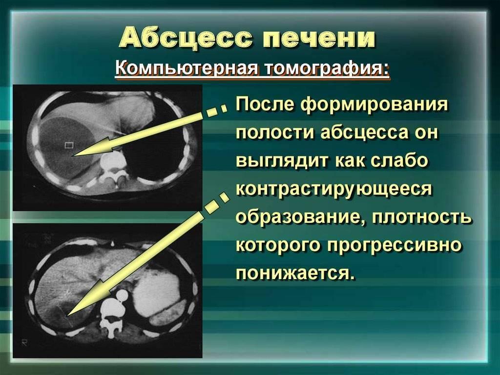 Что такое абсцесс печени, его симптомы и лечение