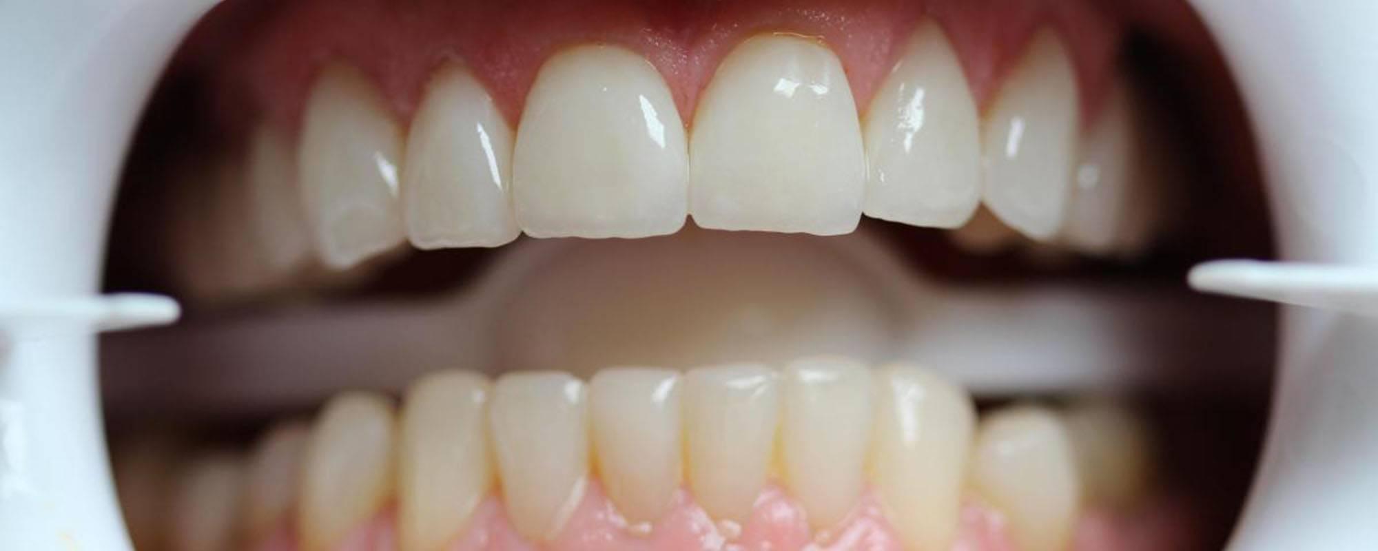 Препарирование зубов под металлокерамическую коронку
