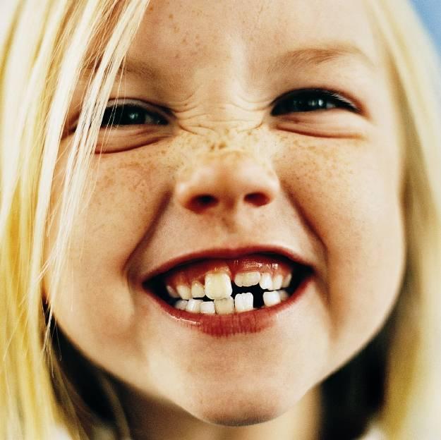 молочные зубы растут криво