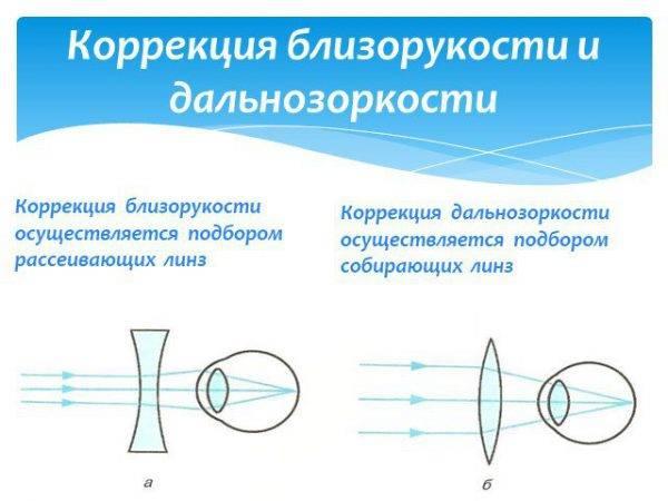 Подробно о распространенных нарушениях зрения: близорукости, дальнозоркости, косоглазии