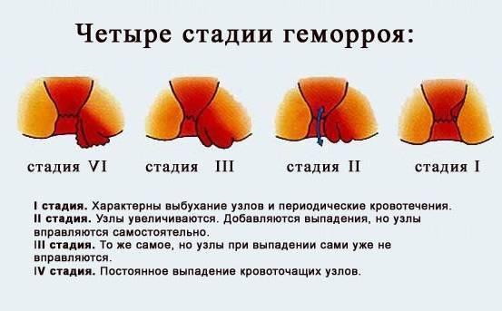 лекарство от геморроя для женщин