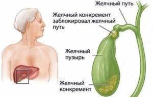 Симптомы и лечение водянки желчного пузыря