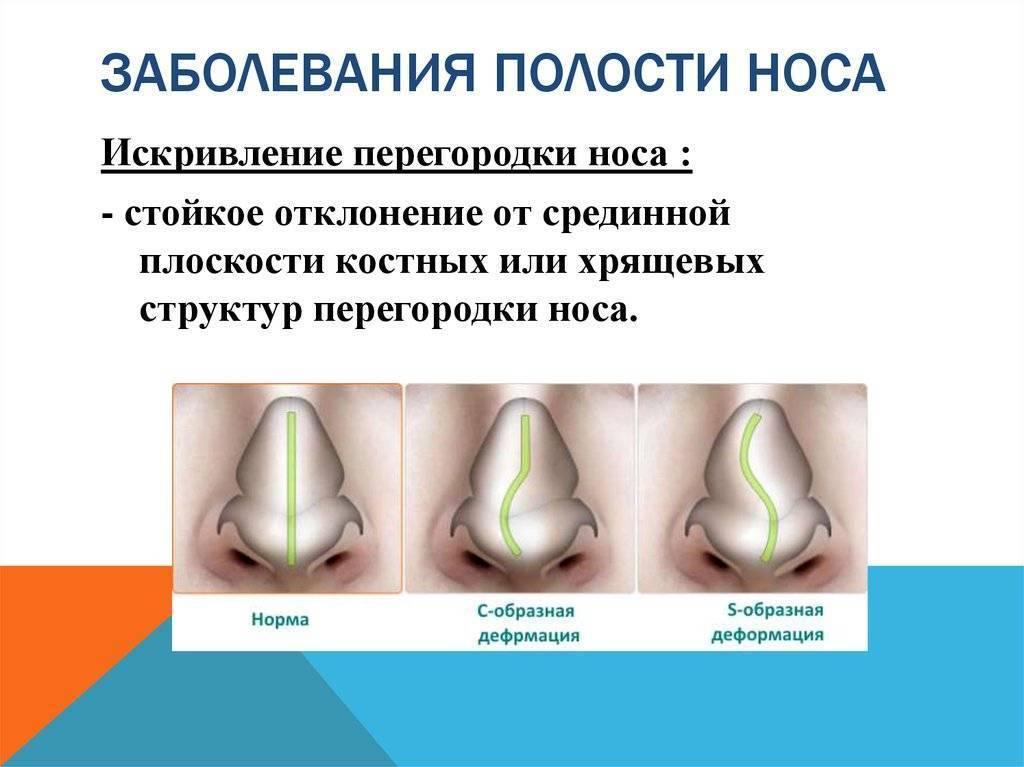заболевания носа симптомы