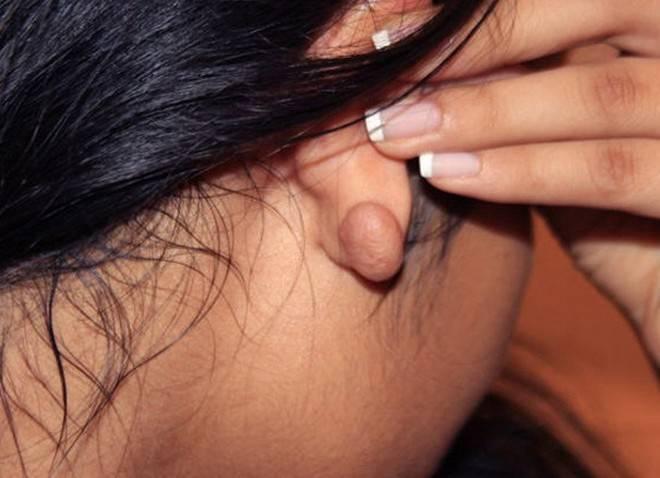 жировики за ушами причины и лечение