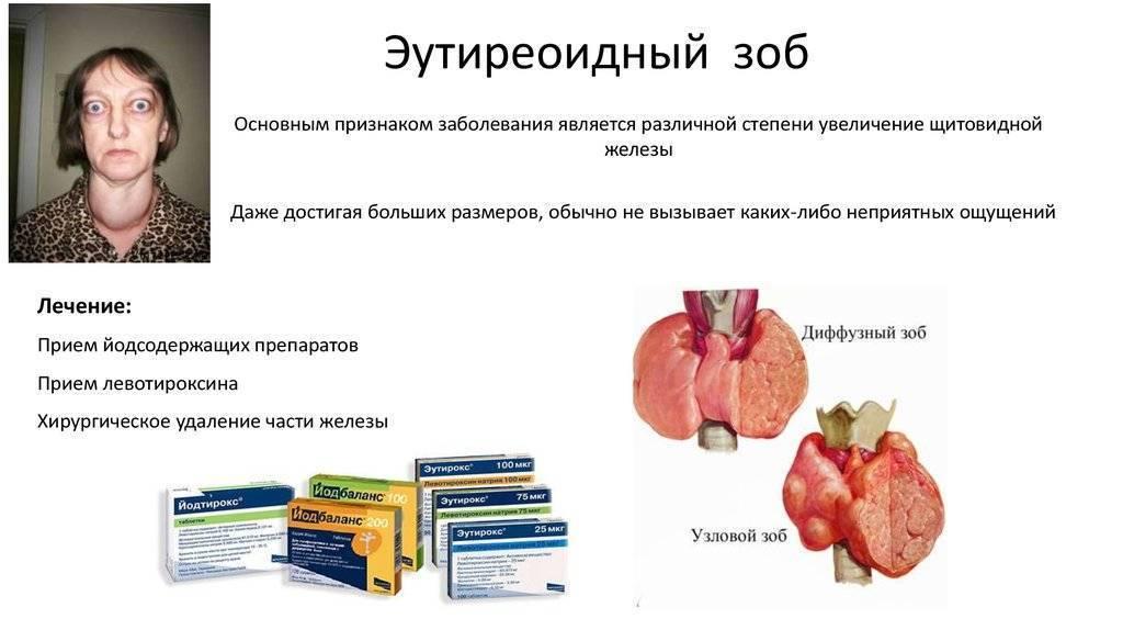 Коллоидный зоб щитовидной железы
