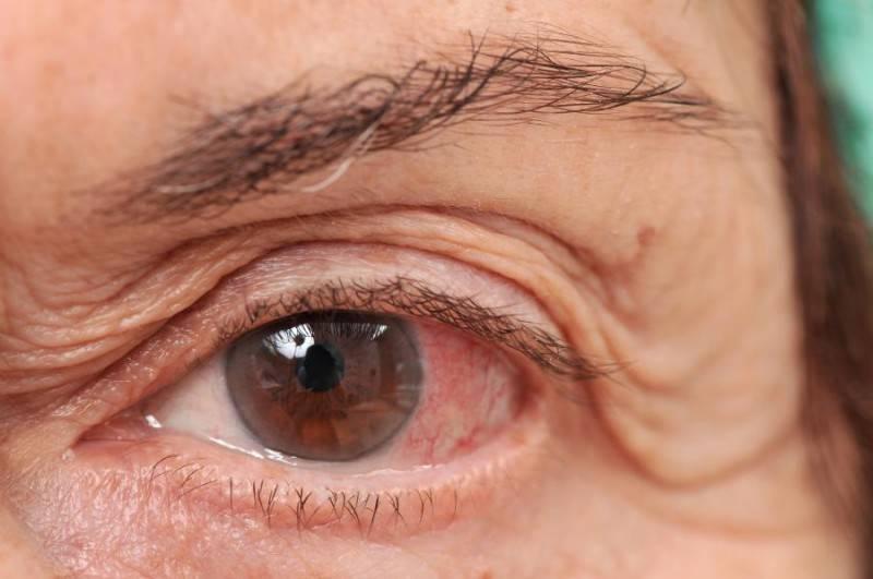 рак глаз симптомы