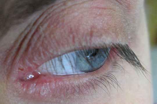 Что такое блефарит глаз