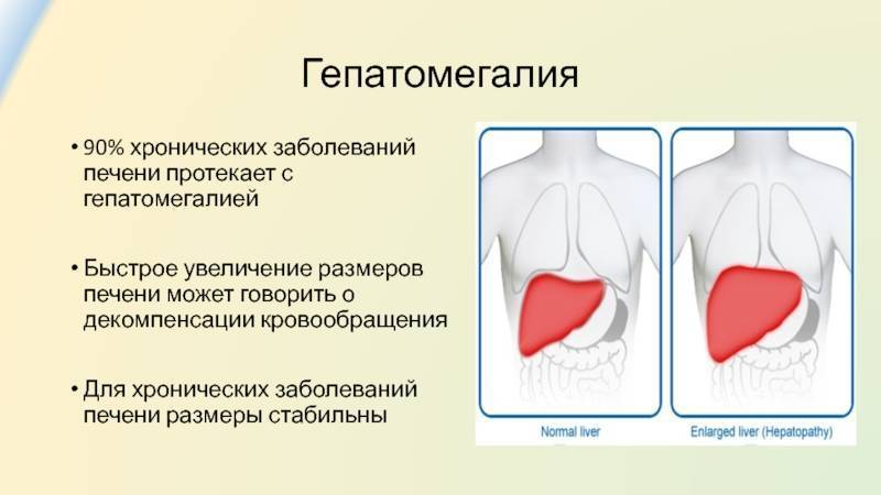 Почему болит печень. причины и симптомы, как болит у женщин, мужчин после алкоголя, антибиотиков, при беге, беременности. диагностика и лечение