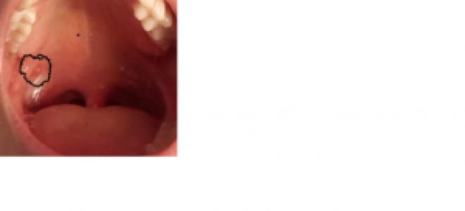 Сопли текут по задней стенке горла у взрослого лечение