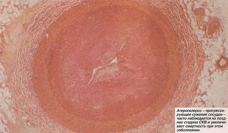 Как проявляется, и чем лечат атеросклероз сосудов головного мозга: синдромы, диагностика, препараты