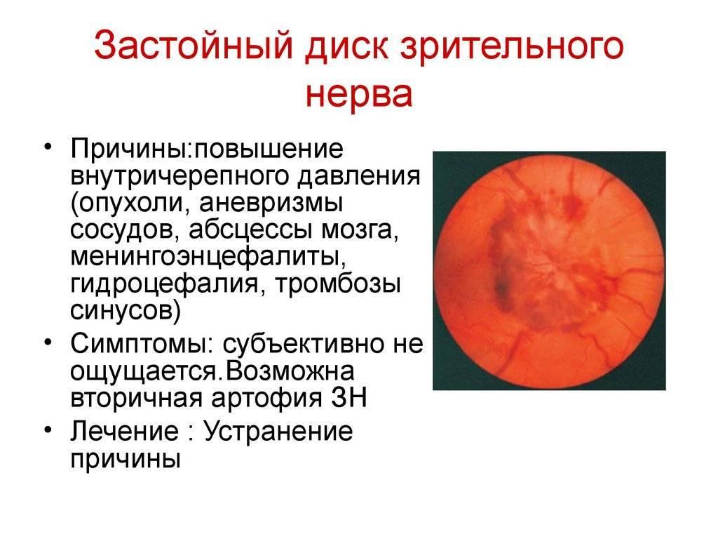"""Отек диска зрительного нерва: """"что  должен знать радиолог"""""""