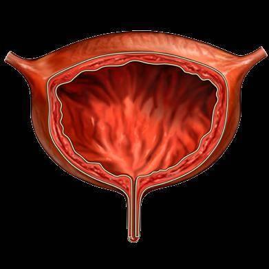 геморрагический цистит симптомы