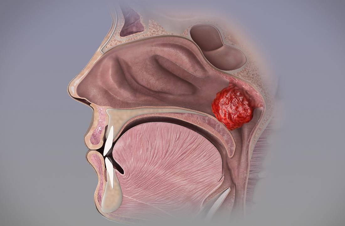 Методы эффективного лечения и удаления кисты в горле