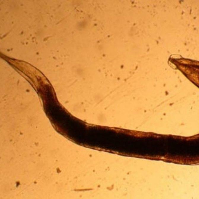 Стронгилоидоз - описание болезни