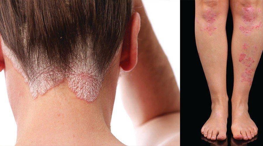 как отличить дерматит от псориаза
