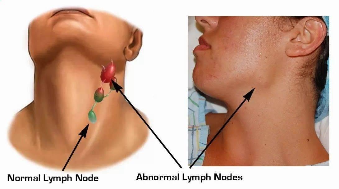 чем лечить воспаленный лимфоузел за ухом