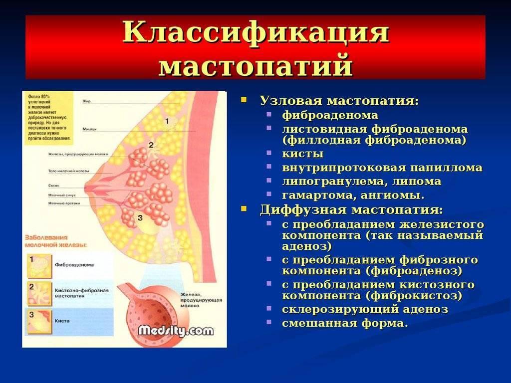 Фиброзно-кистозная мастопатия: лечение и симптомы. кистозная мастопатия: лечение народными средствами
