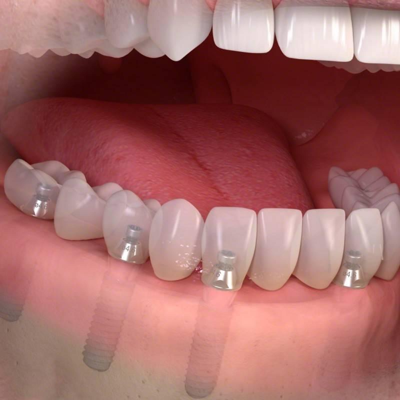 Бесплатное протезирование зубов в москве — 52 места  (адреса, отзывы, фото) | hipdir