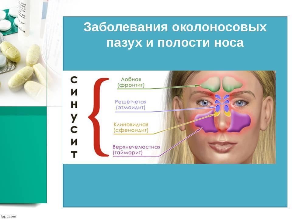 заболевание носа