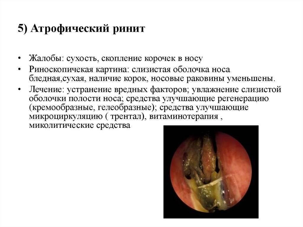 Хронический атрофический ринит: симптомы и лечение