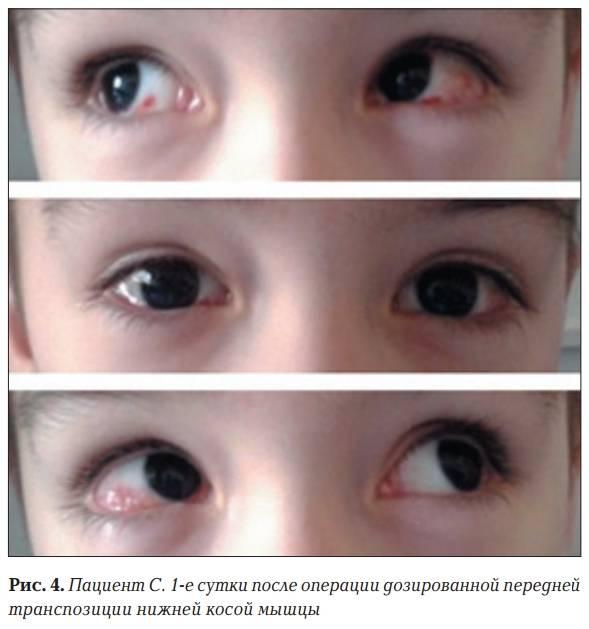 Косоглазие у детей. лечение