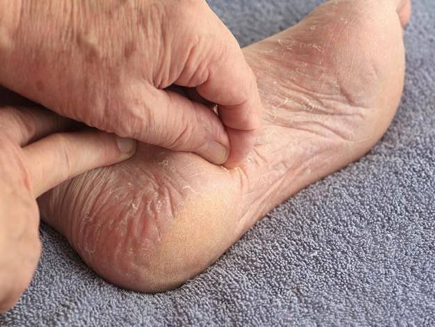 дерматиты на коже ног