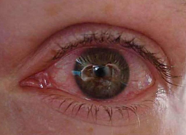 линзы красные глаза