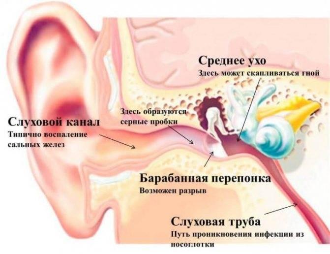 жидкость за барабанной перепонкой лечение