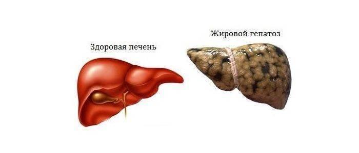 О жировом гепатозе печени: симптомы и лечение