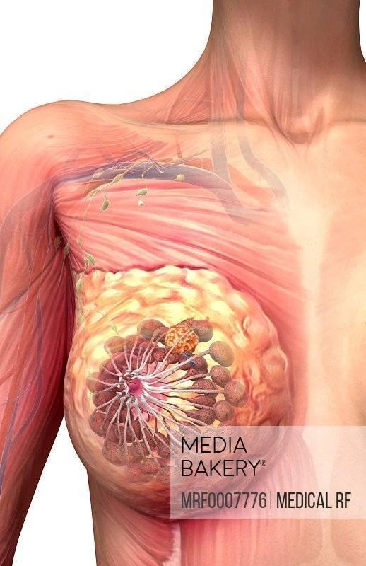 Диффузная фиброзная мастопатия: признаки, симптомы и лечение