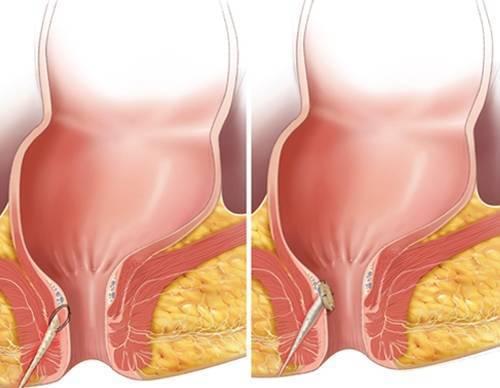Свищ прямой кишки: лечение без операции