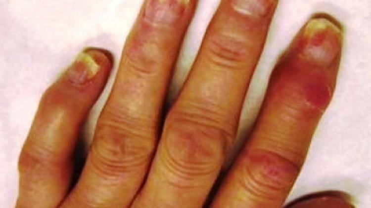 Артропатический псориаз: симптомы и методы лечения болезни