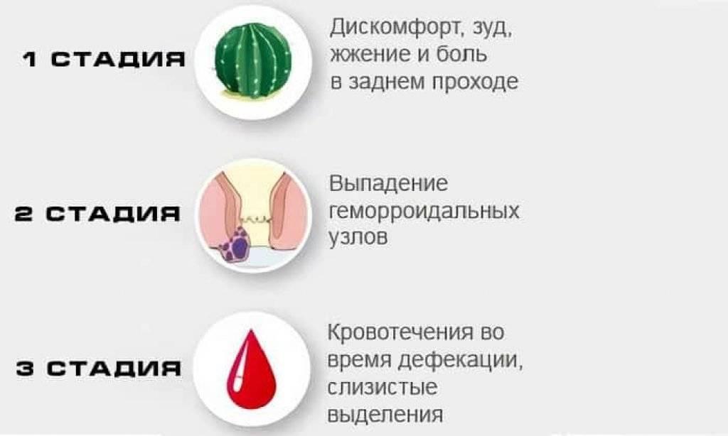 Лечение наружного геморроя у женщин: эффективные методы