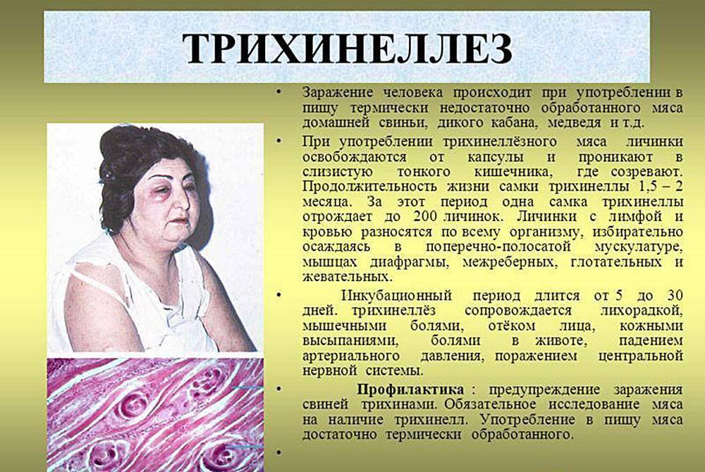 трихинеллы симптомы