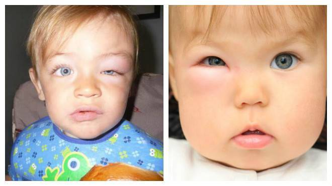 укусил комар опух глаз у ребенка