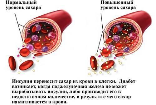 Повышенный холестерин при сахарном диабете 2 типа