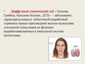 Какие причины провоцируют узловой зоб щитовидной железы 2 степени, основные симптомы и методы лечения?