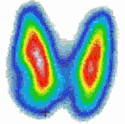 Что такое сцинтиграфия щитовидной железы - показания, подготовка и проведение исследования, побочные эффекты