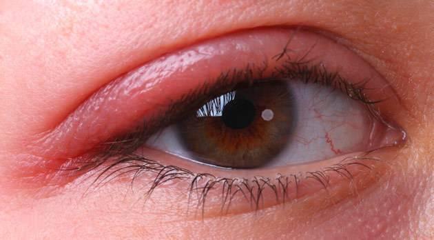 Блефарит. блефарит – причины, симптомы и лечение. виды блефарита – демодекозный, чешуйчатый, аллергический, язвенный, себорейный. лечение блефарита в домашних условиях – мази, народные средства. :: polismed.com