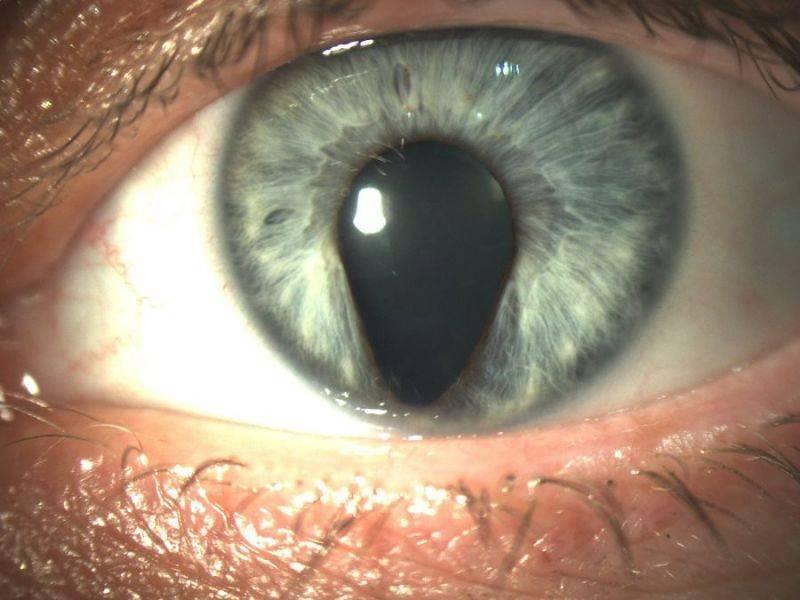 Радужка глаза: строение, функции, болезни и особенности