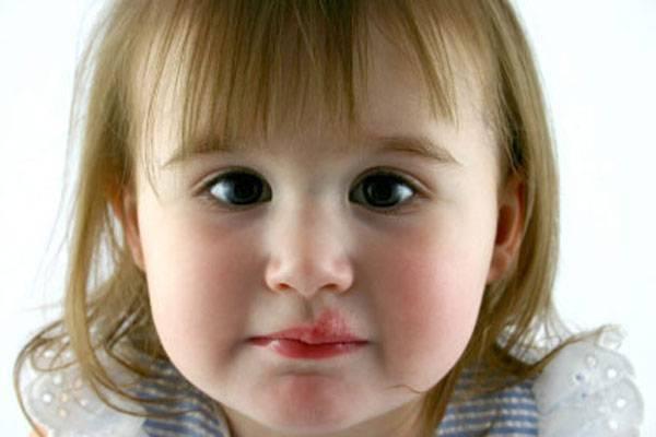 герпес на теле ребенка