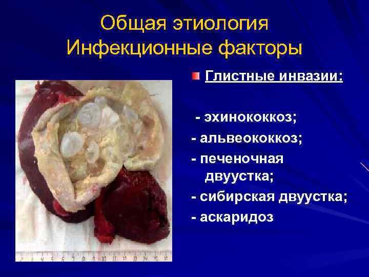 Альвеококкоз печени: клинические проявления и лечение