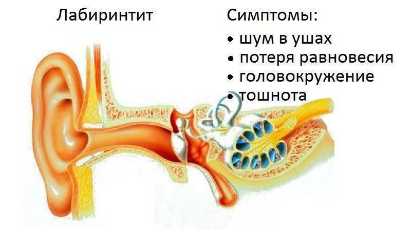 Воспаление внутреннего уха симптомы у взрослых