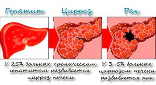 Чем отличается рак печени от цирроза печени