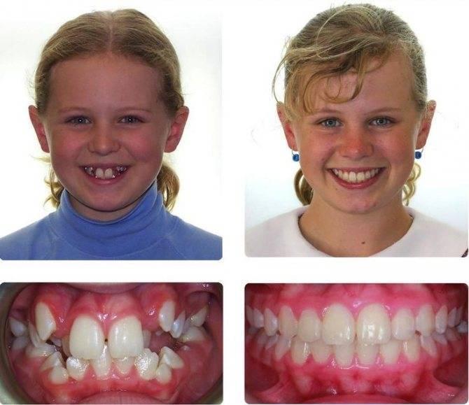Скобы на зубы детям: виды, принцип действия и эффект – 5 фото до и после