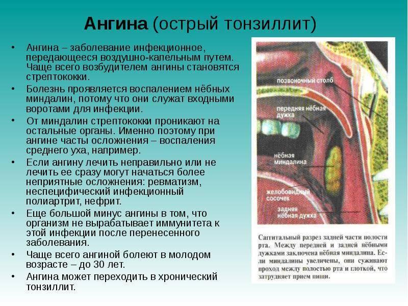 профилактика и лечение тонзиллита